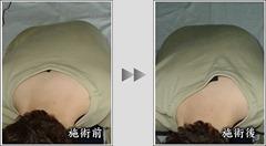そくわん症による腰や背中、肩の違和感に悩む方
